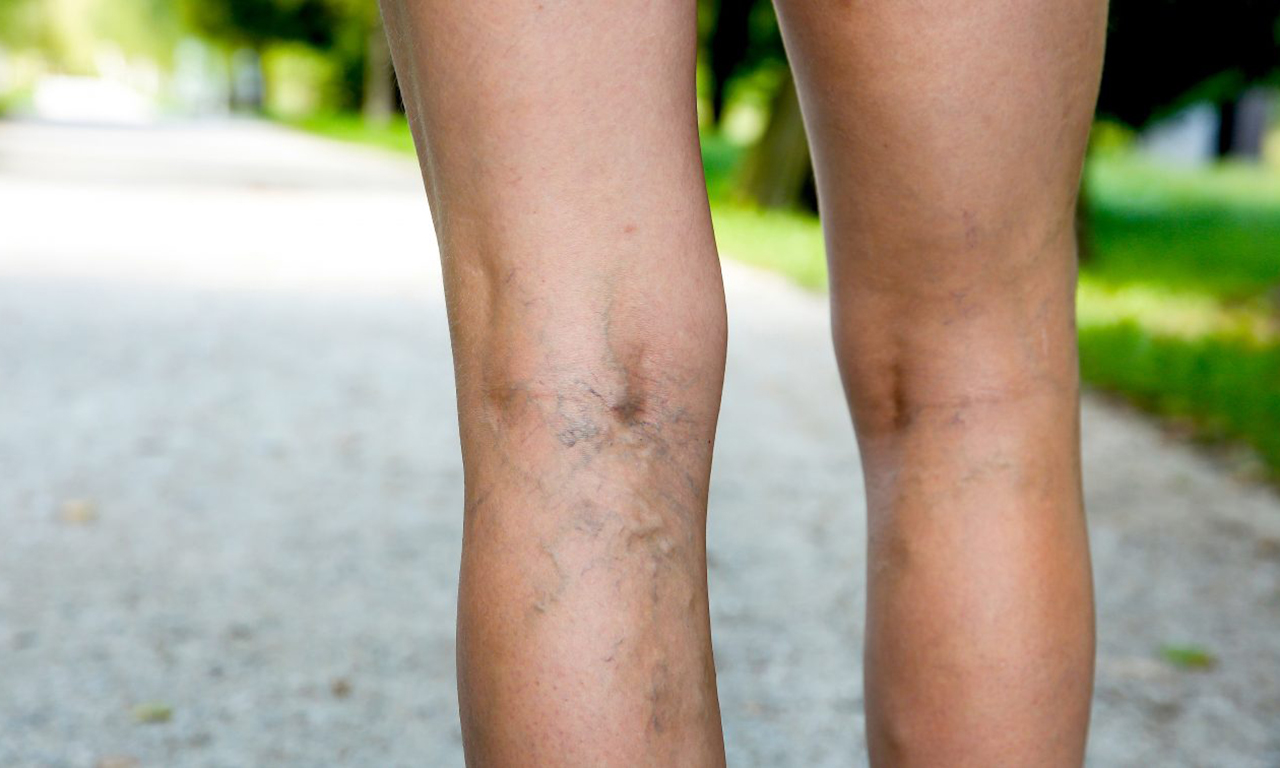 With varicose veins, anti-cellulite massage is prohibited