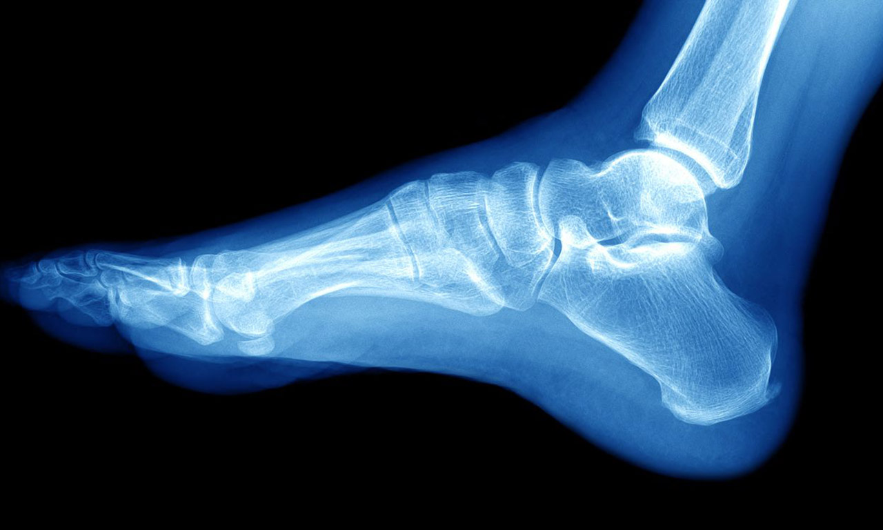 X-ray of the ankle joint